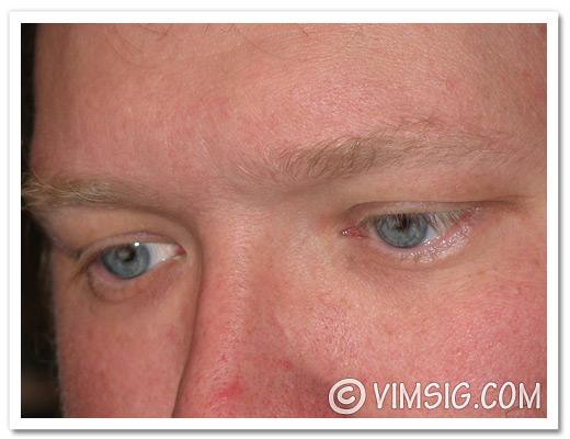 mattias jätteblå ögon