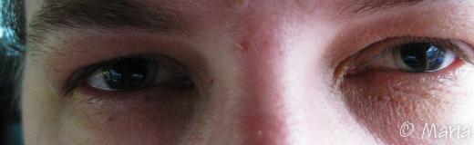 pupiller storlek xxxl